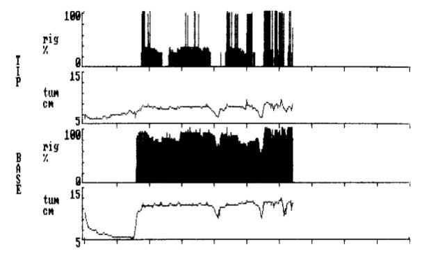 Melanotan II Erectile Dysfunction Graph